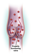 Chronic Venous Insufficiency Treatment offers info on Venous Insufficiency India, Chronic Venous Insufficiency India